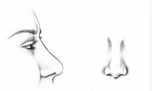 After Revision Rhinoplasty Surgery