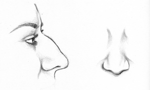 Before Revision Rhinoplasty Surgery